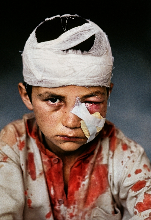 AFGHN-10060, Pul-i-Khumri, Afghanistan, 1992. A bandaged wounded boy.